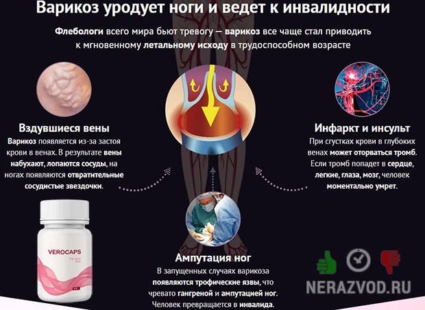 Верокапс препарат от варикоза